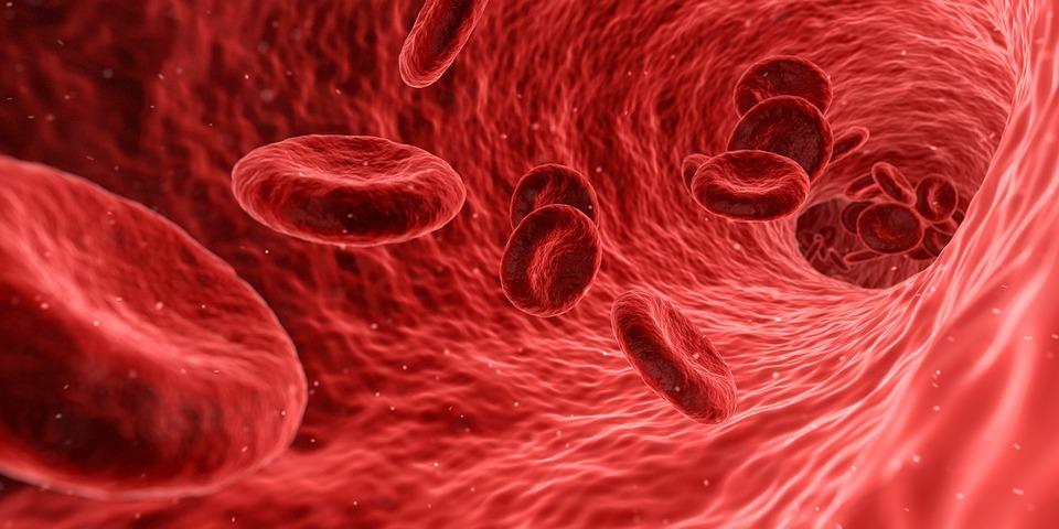Síntomas de la anemia ferropénica